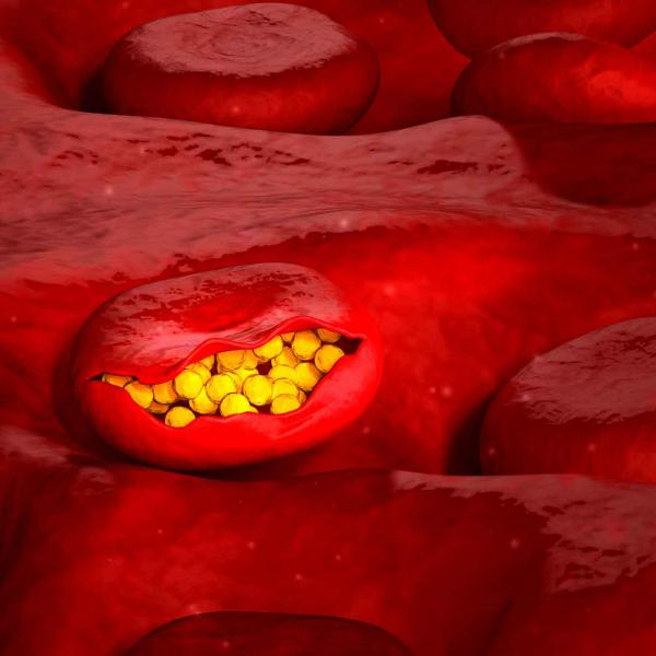 Malaria in blood cells