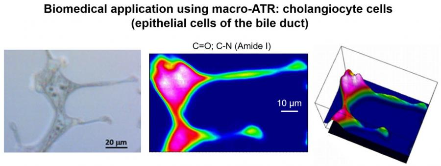 Biomedical application using the macro-ATR. Bile duct epithelial cells