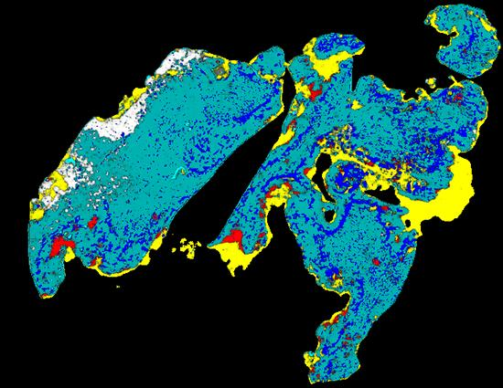 PathoFusion heatmap